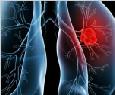 立体放射并内生场加温治疗中晚期肺癌300例的护理论文(附论文PDF版下载)